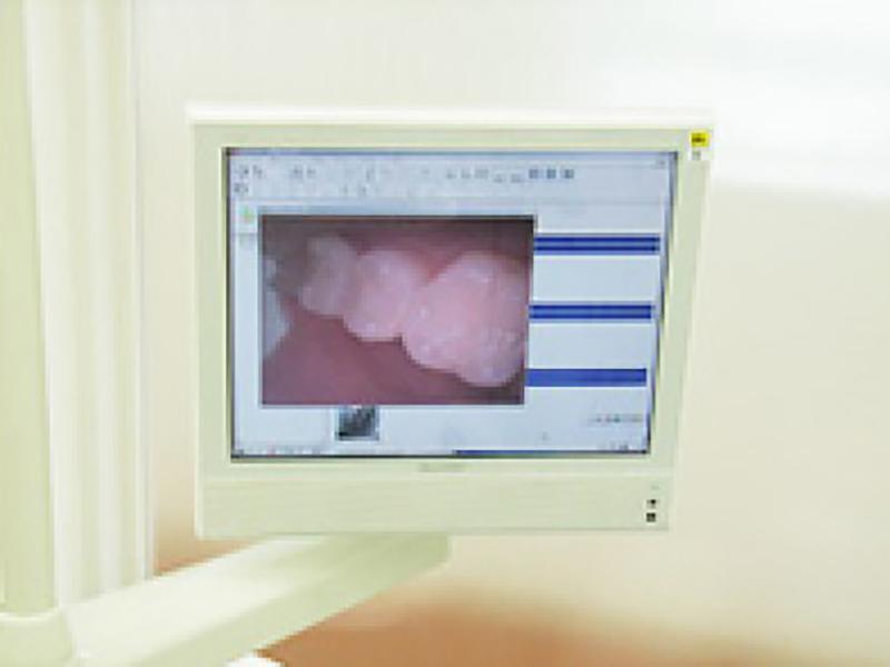 口腔内カメラを使ってわかりやすい治療を行っています