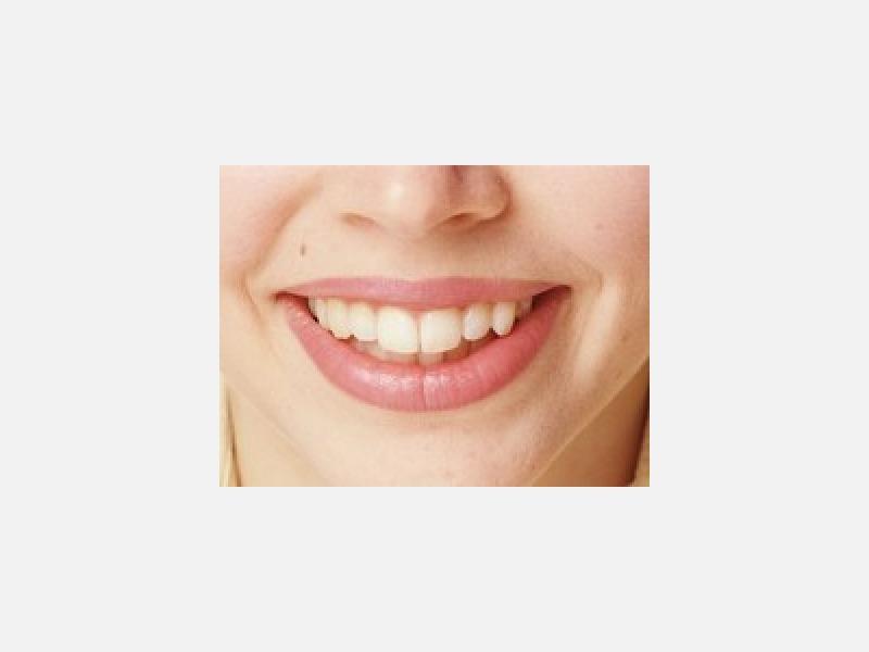 きれいな歯を守ります