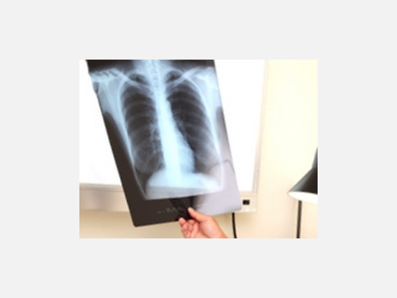 胸部レントゲン