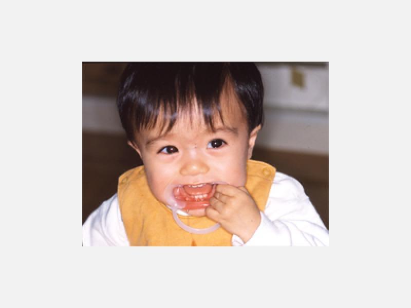 永久歯の虫歯ゼロを目指した小児歯科