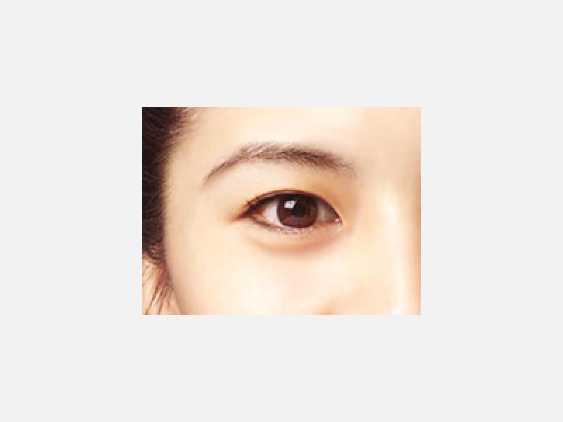 白内障の日帰り手術に力を入れている眼科です。