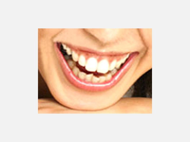 白い歯はどんなアクセサリーよりも美しい