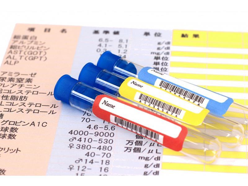 糖尿病合併症(最小血管障害)の検査