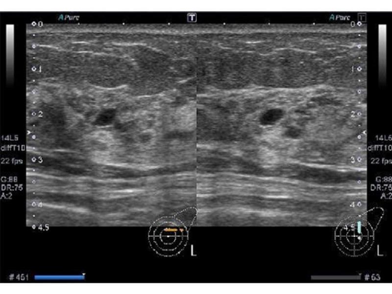 動脈硬化(大血管障害)の検査