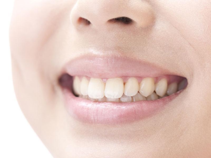 虫歯・歯周病治療からメタルフリー治療や咬合わせ治療まで幅広く