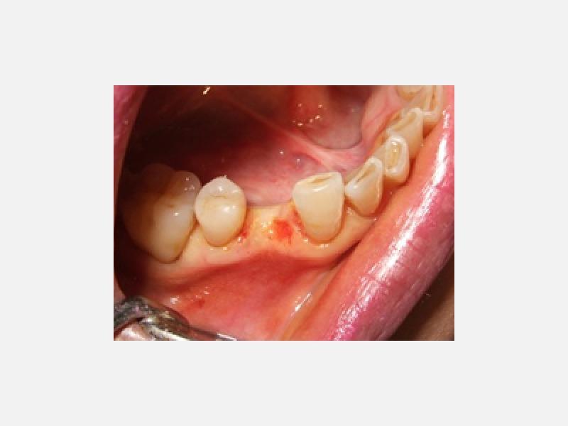 ◆術前 一本だけ歯を失った◆