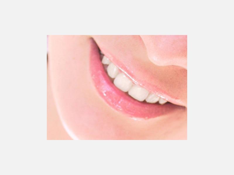 歯科予防指導・歯みがき指導・フッ素塗布