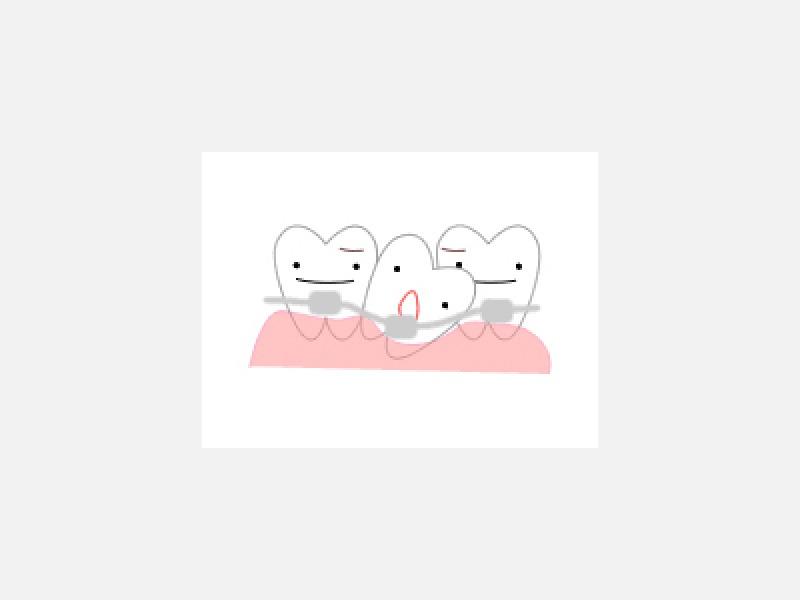 ◆歯、歯茎、歯根、口腔、奥歯、前歯に関する健康相談
