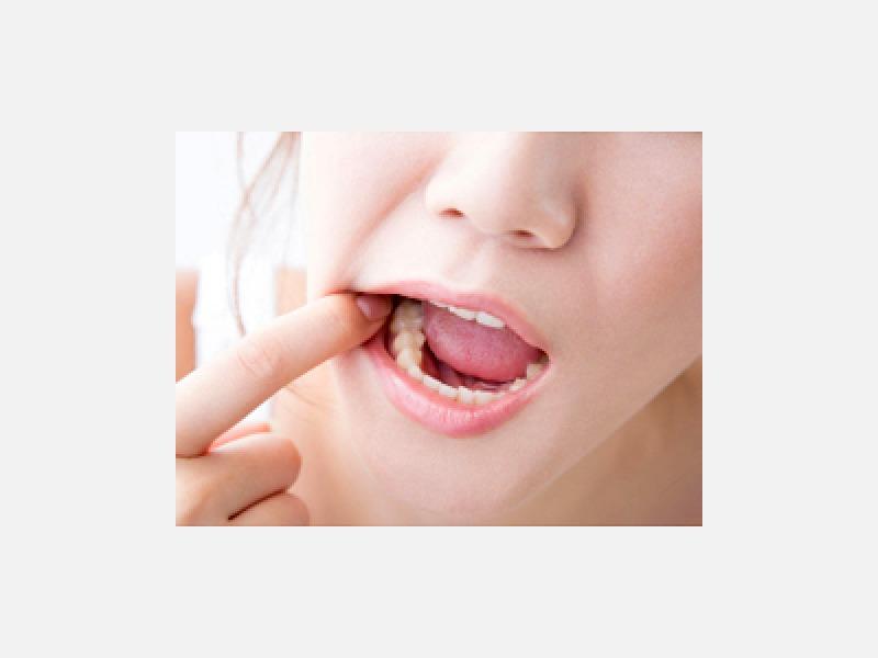 豊島区 池袋駅 つちや歯科医院 虫歯・歯周病治療 予防歯科