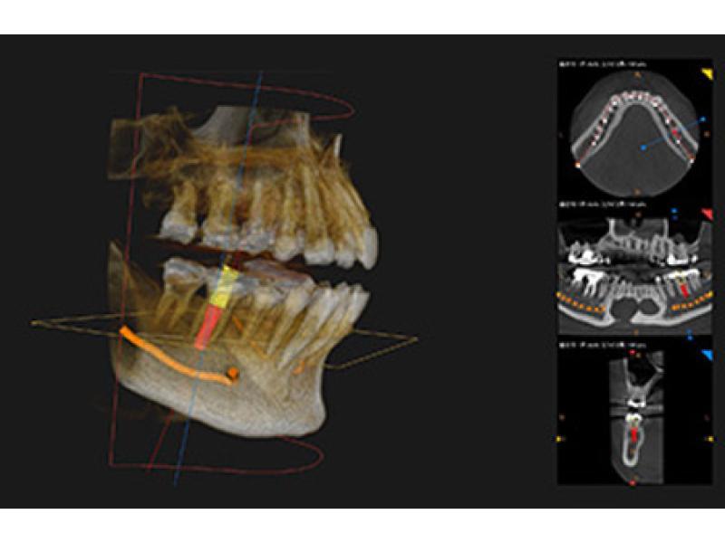 CTデジタルレントゲン装置
