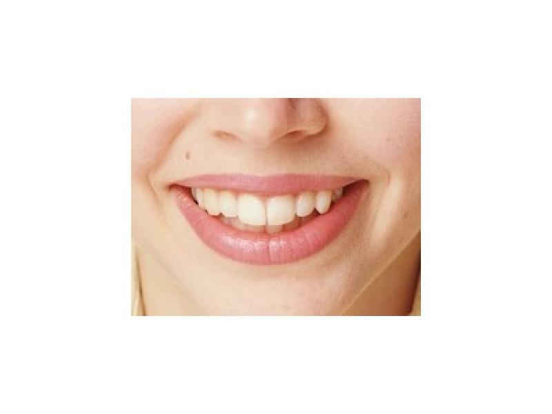 歯科の場合は