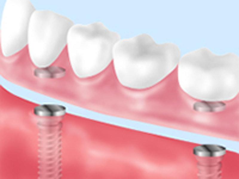 義歯用アタッチメント