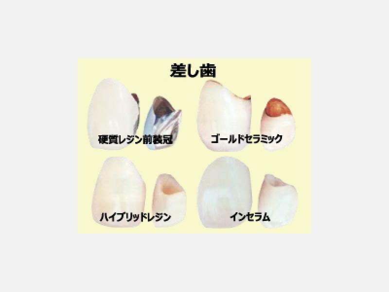 差し歯の種類です(一部)