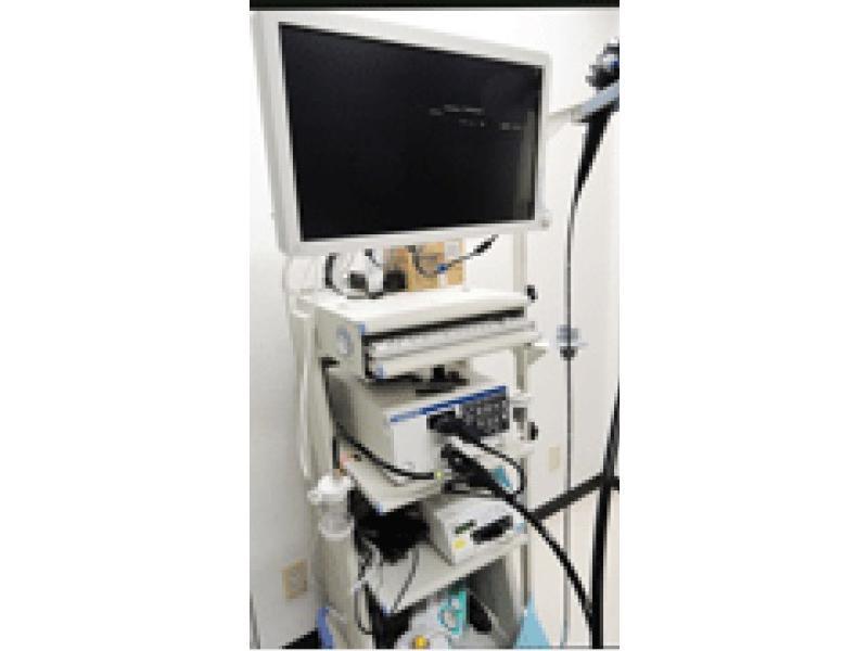 NBI装備の胃内視鏡検査