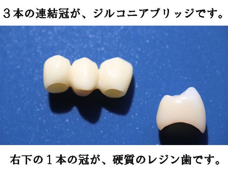 ジルコニアブリッジと、硬質のレジン歯