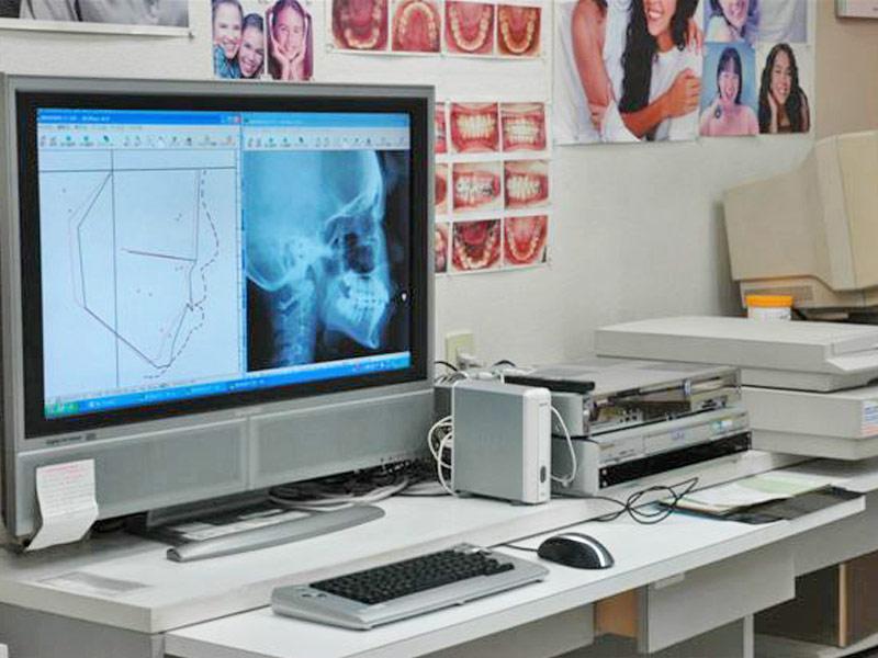 矯正治療について大画面PCでわかりやすく説明します