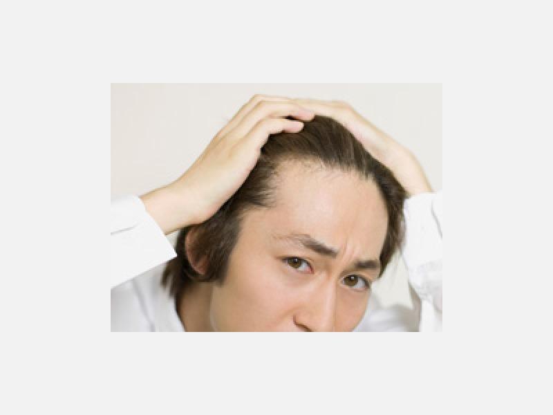 男性型脱毛症に関する自費治療