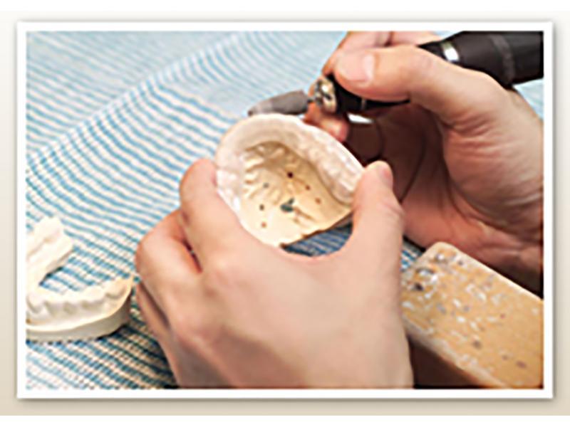 ◆急なトラブルやご要望にあった技工物を短時間で制作可能です。