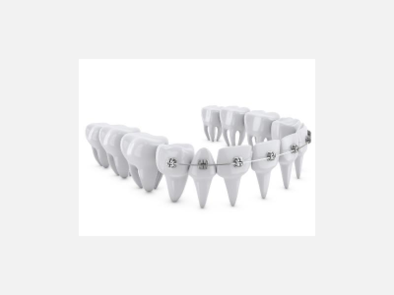 噛み合わせ・歯並びに関するご相談