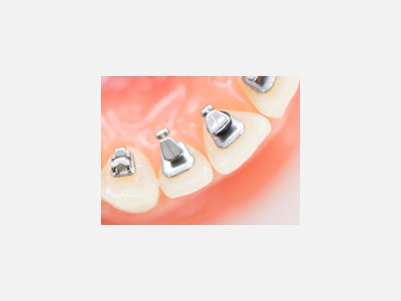 矯正治療で美しい歯並びに!