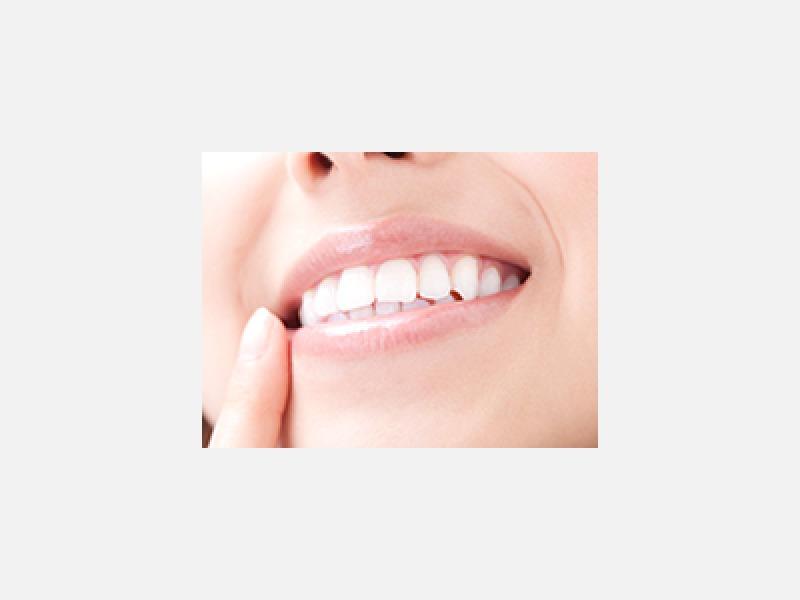 ホワイトニングで輝く白い歯に!